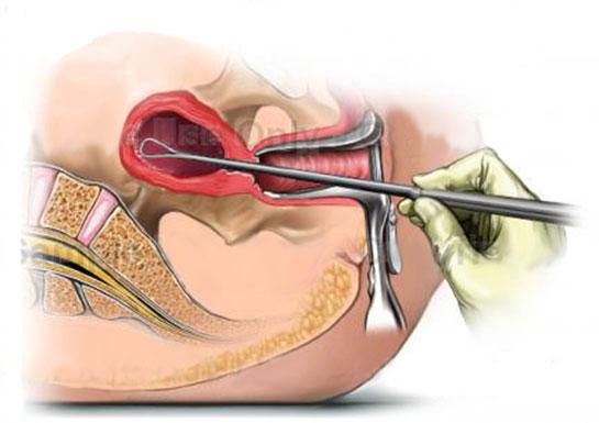 Endometrial Biyopsi